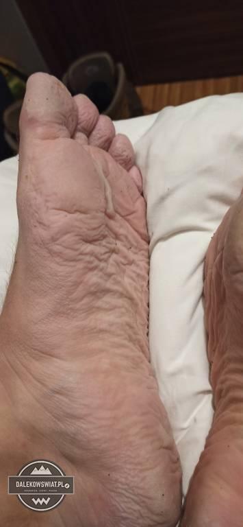 stopa okopowa